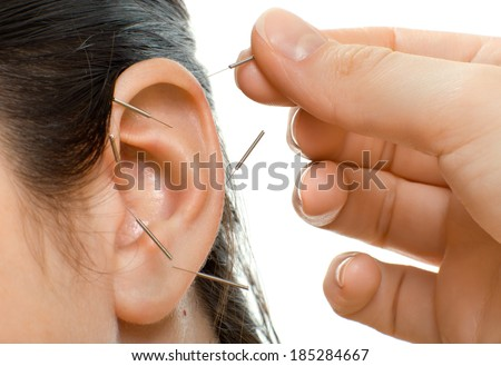 acupuncture therapy on auricle, horizontal very close up photo - stock photo