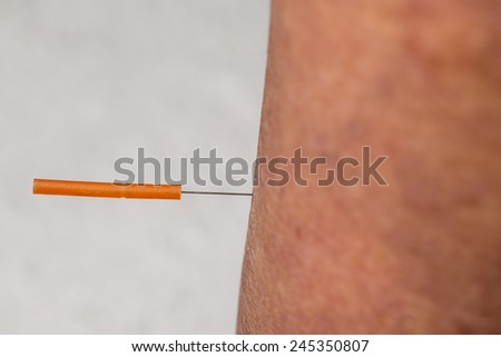 acupuncture treatment on leg - stock photo