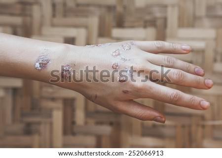 Acute pain in a women hand. Grain added - stock photo
