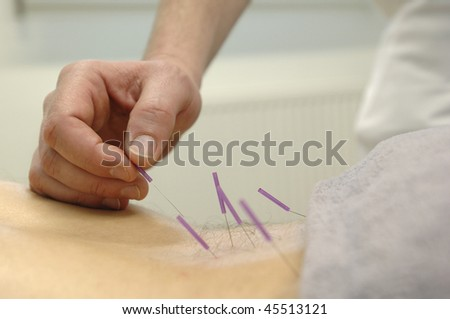akupunktur - stock photo