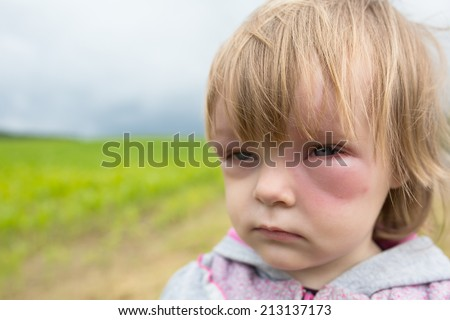 Allergy after mosquitoes biting at small girl - stock photo