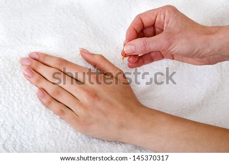 Alternative practitioner applying acupuncture needles. Chiropractor applying acupuncture needles over a white towel - stock photo