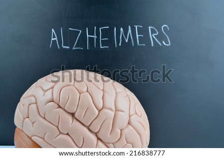 Alzheimers - stock photo