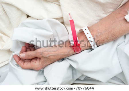 An elderly woman wearing medical arm bands for identification purposes. - stock photo