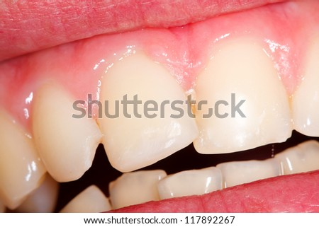 An fractured incisor filled with composite resin. - stock photo