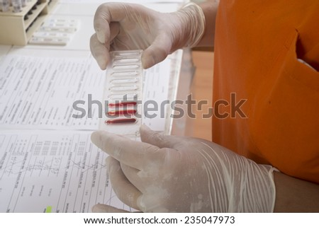 Analysis laboratory - blood test real action  - stock photo