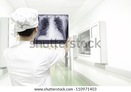 analysis X-ray of the chest. Woman doctor holding a chest X-ray in hospital ward. - stock photo