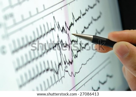 analyzing medical graph on screen - stock photo