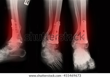Ankle right joint : fracture ankle right joint - stock photo
