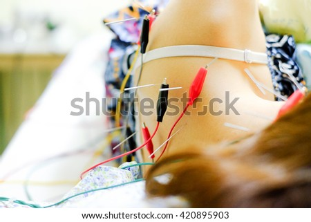 Asian girl Getting An Acupuncture Treatment - stock photo
