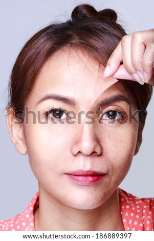 Asian woman with problem and clean skin - stock photo