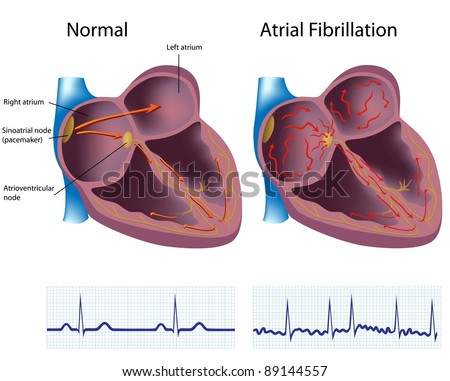Atrial fibrillation, a common heart disease - stock photo