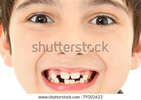 Attractive young boy with missing teeth close up detail. - stock photo
