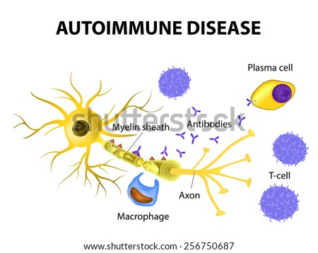 Autoimmune Disease. Multiple sclerosis - Immune cells attack the myelin sheath that surrounds nerve cells.  Antibodies initiate myelin injury (macrophage activation).  - stock photo