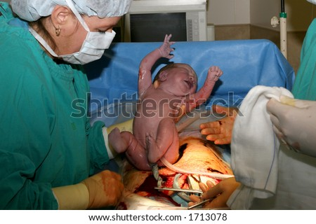 Baby being born - stock photo