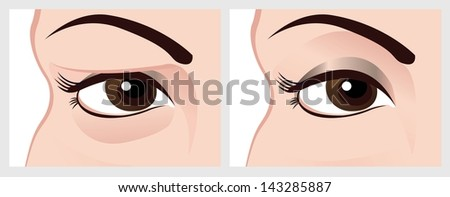 Baggy eyes before and after treatment. Illustration on the white background - stock photo
