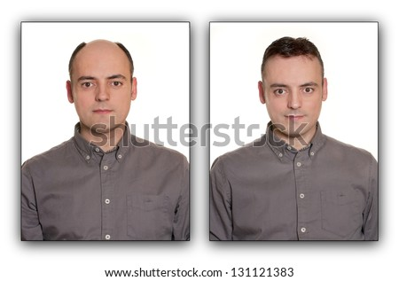 Bald man with a Wig. Before & After Concept. - stock photo