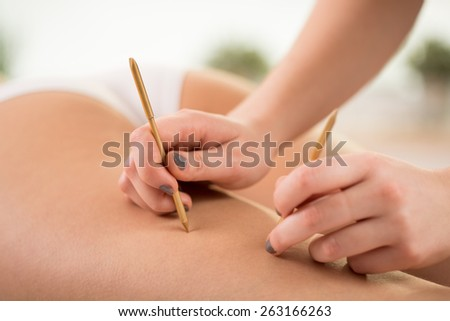 Beautician using acupuncture needles to reduce cellulite - stock photo