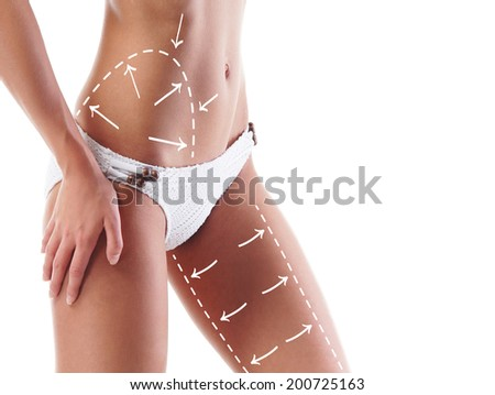 Beautiful and fit female body with the drawing arrows. Plastic surgery, healthy nutrition, liposuction, sport and cellulite removal concept. - stock photo