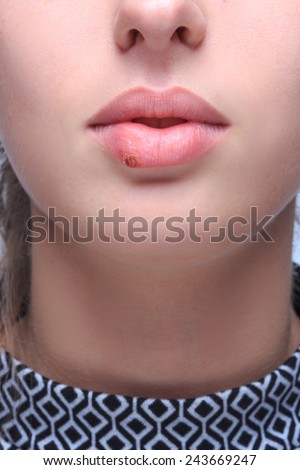 beautiful lips virus infected herpes - stock photo