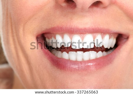 Beautiful woman smile. Dental health care concept. - stock photo