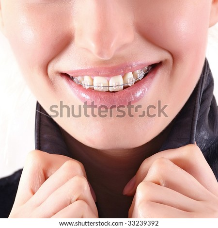 Beautiful young brunette with brackets on teeth in white close up, isolated on a white background, please see some of my other parts of a body images - stock photo