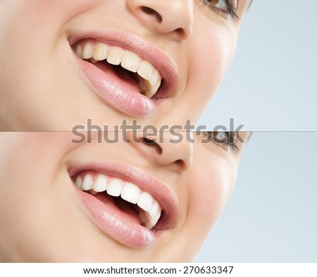 Beautiful young European woman with white teeth. Before and after treatment difference. - stock photo