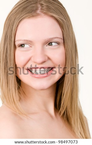 Beautiful young girl with brackets on teeth close up - stock photo
