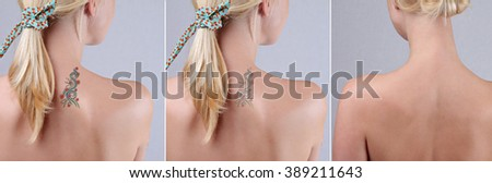 Beautiful young woman before and after laser tattoo removal treatment - stock photo