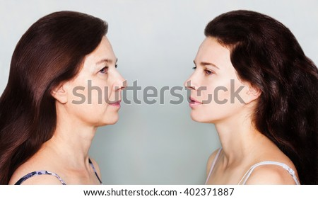 Beauty concept skin aging, anti-aging procedures, rejuvenation, lifting, tightening of facial skin, restoration of youthful skin anti-wrinkle. Before and after, mother and daughter - stock photo