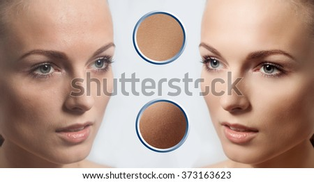 Before and after cosmetic operation. Young pretty woman portrait, isolated on a white background. Before and after cosmetic or plastic procedure, anti-age therapy. examples of perfect skin - stock photo