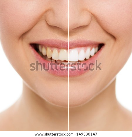 Before and after teeth bleaching or whitening treatment. Close-up of young Caucasian female's smile.    - stock photo