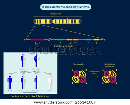 Beta-thalassemia major - stock photo