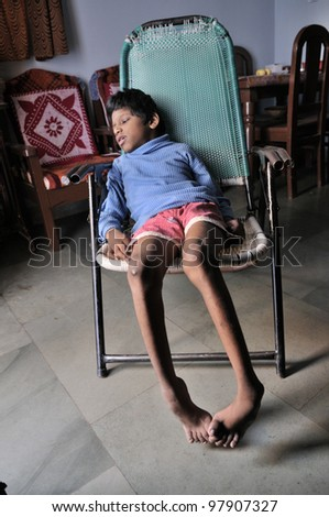 BHOPAL- NOVEMBER 30:9 years old Sitesh who is suffering from Spastic Cerebral Palsy and Spina bifida which restricts his movement and speech sitting in his room  in Bhopal -India on November 30, 2010. - stock photo