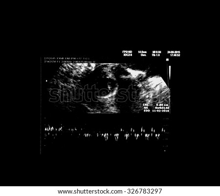 Black and white ultrasound image of the baby in the womb : (Gestational age approximately 4 weeks / approximately 1 month). - stock photo