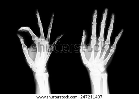 Black and white X-ray of the fingers to check for irregularities in the motion of the fingers are not. - stock photo