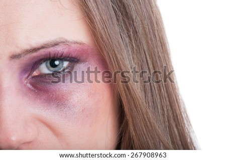 Black or bruised woman eye concept with copy space on whte background - stock photo