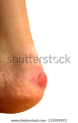 Blister on heel, isolated on white - stock photo