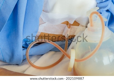 Blood and fluid drain from surgeon patient to vacuum bulb - stock photo