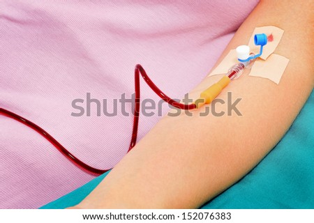 Blood transfusion solution in a patients hand - stock photo
