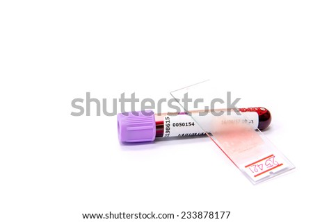 Blood Tube form Patient and blood slide smear - stock photo