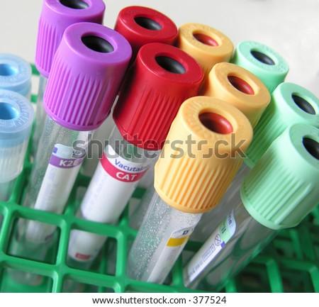blood tubes - stock photo
