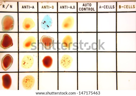 Blood type test - stock photo
