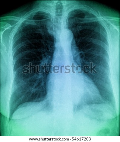 blue chest, x-ray of human thorax in colour - stock photo