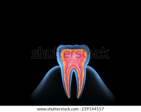 Blue x-ray molar by section. - stock photo