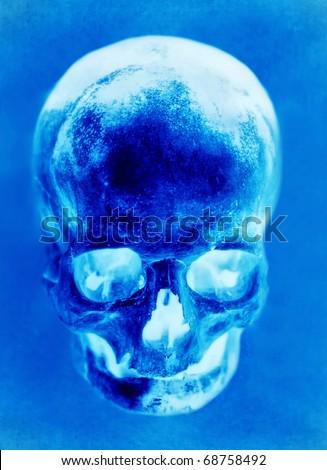 Blue X-ray of skull - stock photo