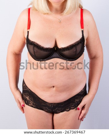 Body before a plastic surgery - stock photo