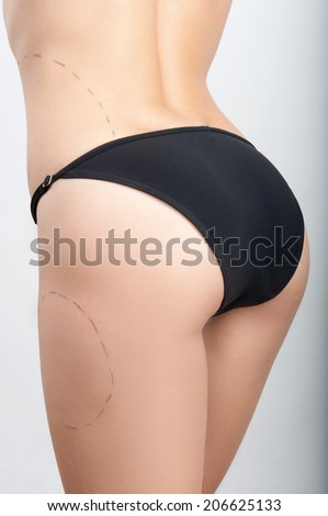 Body correction with the help of plastic surgery, perforation lines on leg and abdomen, isolated on white background, side view - stock photo