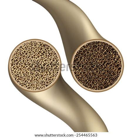 Bone health symbol as an osteoporosis medical illustration concept showing a close up comparison of human skeletal bones as a healthy and unhealthy porous anatomy. - stock photo
