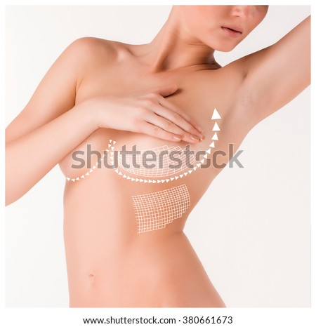 Boobs correction with help of plastic surgery on white background - stock photo